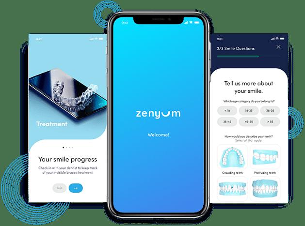 Zenyum | App